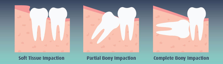 Full Bony Wisdom Tooth